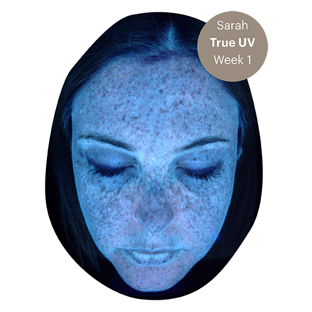 What were Sarah's original, most-pressing skin concerns?